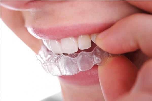 Công nghệ chỉnh hình răng In
