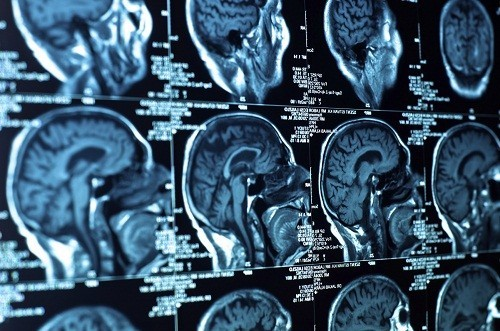 Chụp CT não cung cấp thông tin về các mô não và cấu trúc hộp sọ chi tiết hơn so với chụp X quang.