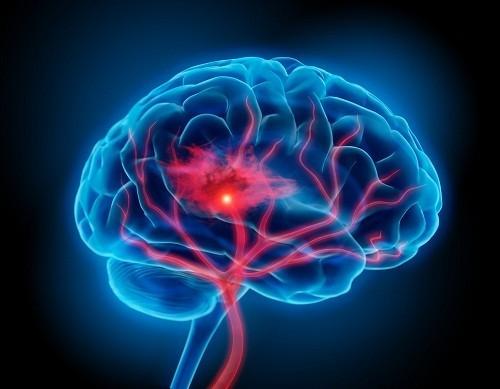 Đột quỵ hay tai biến mạch máu não, xảy ra khi việc cung cấp máu lên một phần não bộ đột ngột bị ngưng trệ.