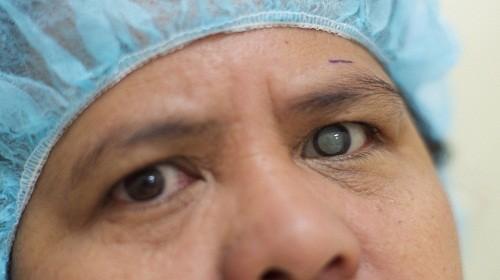 Những tác hại của bệnhđục thủy tinh thểvới mắt là rất lớn, đặc biệt nếu không chữa trị kịp thời, bệnh có thể gây mù lòa.