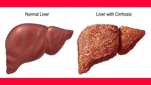 Xơ gan là một bệnh lý về gan khá phổ biến trên thế giới cũng như ở nước ta.