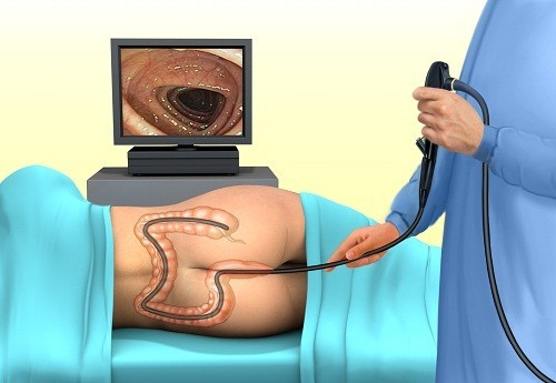 Nội soi đại tràng là một thủ thuật có tác dụng thăm khám toàn bộ đại tràng bằng một ống soi có đường kính khoảng 1 cm có gắn camera ở đầu.