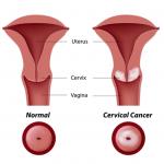 Giải đáp một số câu hỏi thường gặp về ung thư cổ tử cung