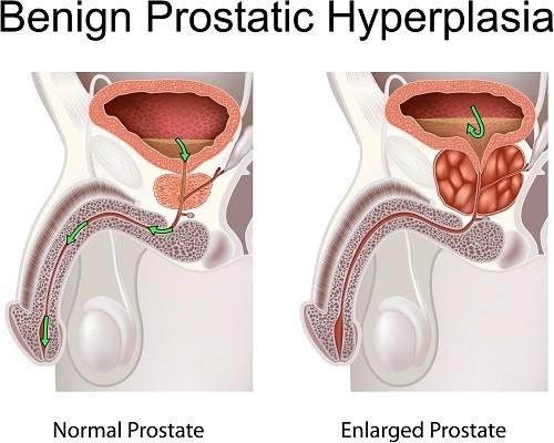 U xơ tuyến tiền liệt không phải là bệnh lý ác tính mà là sự phì đại lành tính của tuyến tiền liệt xảy ra ở nam giới lớn tuổi .