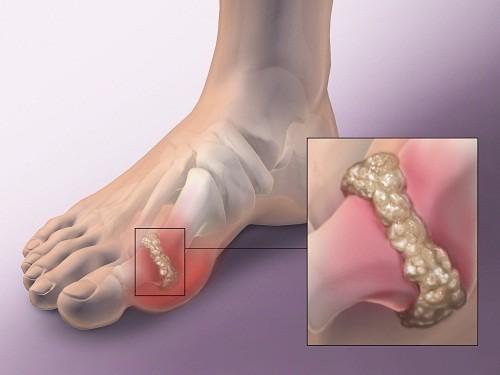 Bệnh gút thường ảnh hưởng đến các khớp ở phần dưới của cơ thể như đầu gối, mắt cá chân, hoặc ngón chân.