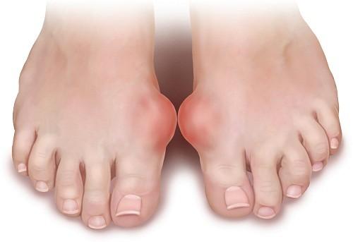 Khi tinh thể acid uric tích tụ trong khớp và các mô bao quanh tới một giới hạn nào đó, người bệnh sẽ có các triệu chứng như nóng, đau, sưng và rất mềm ở một số khớp nào đó, thường là ngón chân cái.