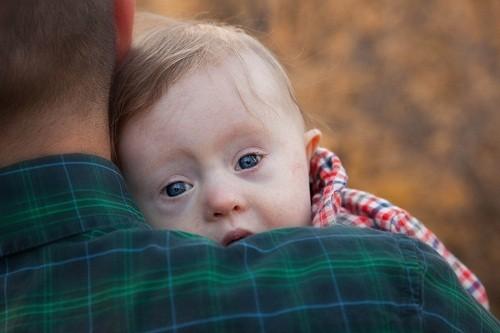 Hội chứng Down là một trong những dị tật bẩm sinh thường gặp.