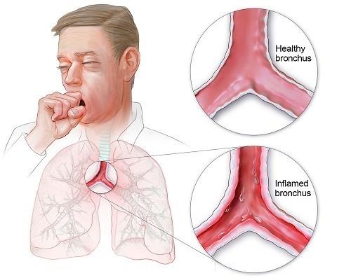 Viêm phế quản là một bệnh lý của đường hô hấp trong đó lớp niêm mạc của phế quản trong phổi bị viêm.