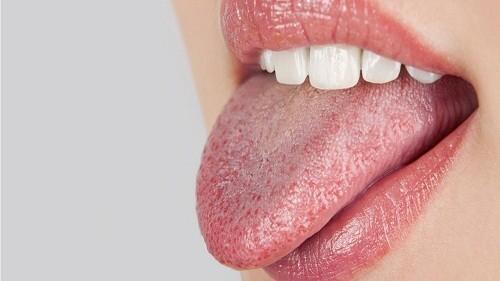 Khô miệng có thể ảnh hưởng đến dinh dưỡng và tâm lý, gây khó khăn trong ăn uống, nói, thay đổi vị giác, nhiễm trùng răng miệng...