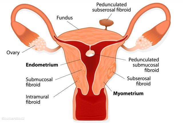 Cẩn trọng với ung thư buồng trứng sau tuổi 40