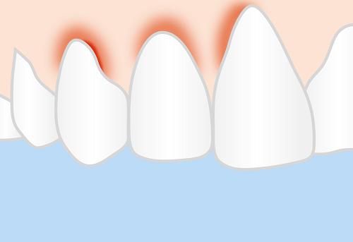 Nguyên nhân gây bệnh nướu là do vi khuẩn ở trong mảng bám hoặc cao răng tồn tại lâu trong miệng.