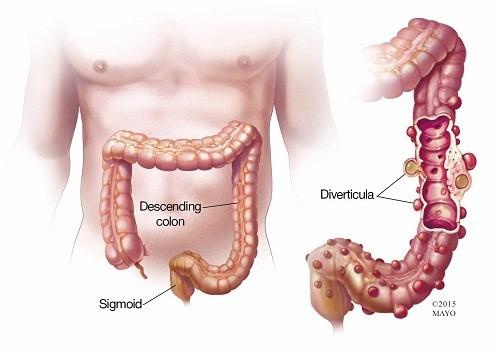 Viêm túi thừa xảy ra khi một hoặc nhiều túi thừa của ống tiêu hóa bị viêm hoặc nhiễm khuẩn.