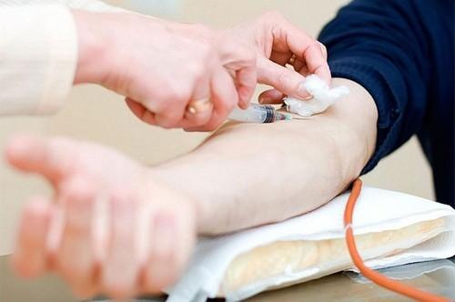 Xét nghiệm máu là một dạng xét nghiệm được ứng dụng phổ biến nhất trong ngành y học hiện nay với rất nhiều công dụng.