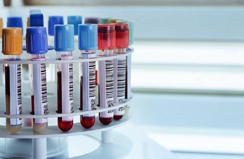 Kết quả xét nghiệm sẽ được các bác sĩ giải thích và tư vấn cụ thể nếu người bệnh có vấn đề về sức khỏe.