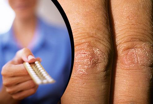 . Các nhà nghiên cứu cho rằng có mối liên kết giữa hormones và bệnh vẩy nến.