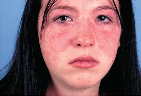 Ban cánh bướm ở mặt là  một dấu hiệu điển hình của bệnh lupus ban đỏ hệ thống