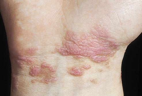 Những dấu hiệu bất thường như có nốt sần dẹt, màu tím, rất ngứa ở cổ tay... có liên quan tới bệnh viêm gan C.
