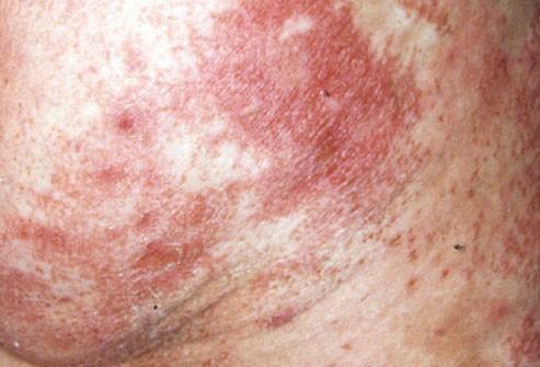 Phát ban có vảy ở mông xuất hiện kèm theo đau và đỏ ở lưỡi, đây có thể là dấu hiệu của khối u ở tuyến tụy.