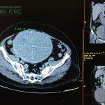 BV Thu Cúc phẫu thuật thành công khối u tử cung 22cm