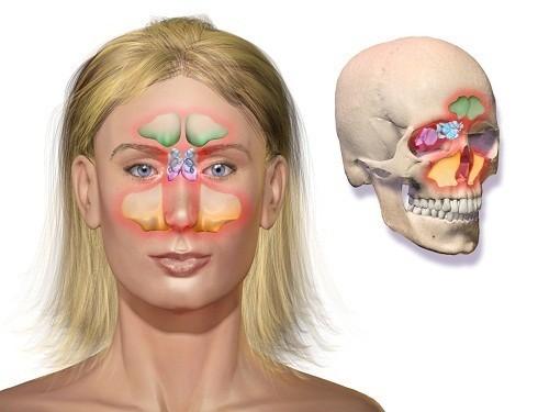 Viêm xoang là tình trạng viêm hoặc sưng của lớp niêm mạc ở các xoang.
