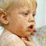 Những điều nên biết về bệnh sởi