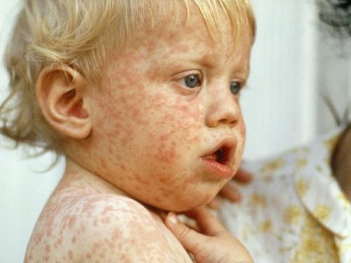 Sởi là một trong những nguyên nhân hàng đầu gây tử vong cho trẻ dưới 5 tuổi.