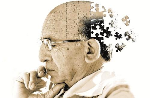 Tình trạng mất trí nhớ sẽ tăng dần lên trong suốt các giai đoạn của bệnh Alzheimer.