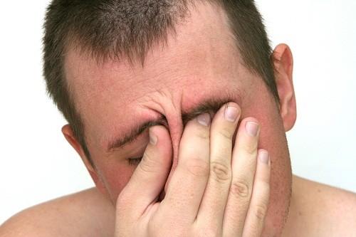 Cơn đau ở mặt ở mức từ âm ỉ tới đau nhói, đặc biệt trở nên nghiêm trọng khi người bệnh chúi đầu về phía trước.