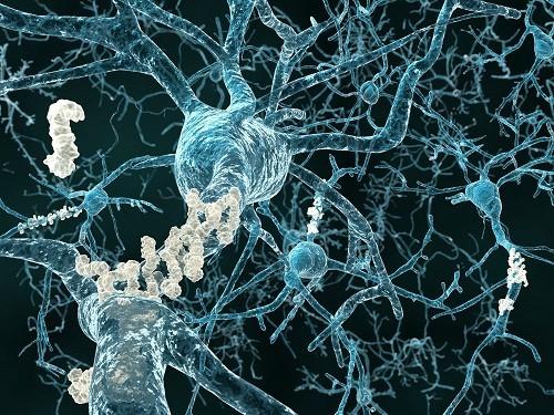 Nguyên nhân  gây ra bệnh Alzheimer vẫn chưa được xác định chính xác.
