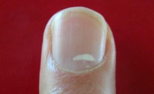 Xuất hiện đốm trắng trên móng tay có thể cảnh báo cư thể thiếu hụt một số yếu tố vi lượng như kẽm, calci, vitamin c trầm trọng.