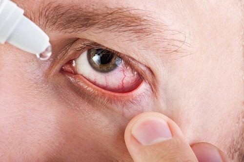Việc điều trị tùy thuộc vào nguyên nhân dẫn tới tình trạng khô mắt và mờ mắt.