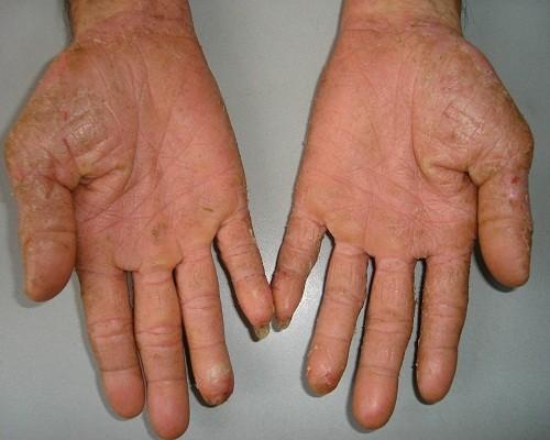 Bệnh tổ đỉa, một dạng của bệnh chàm, có thể gây ngứa ở bàn tay và bàn chân.