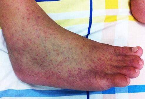 Bênh nhân nhiễm  vi rút chikungunya có các triệu chứng như sốt cao đột ngột, đau nhức dữ dội các khớp cổ tay, bàn chân và bàn chân làm cho bệnh nhân không thể đứng thẳng lên được