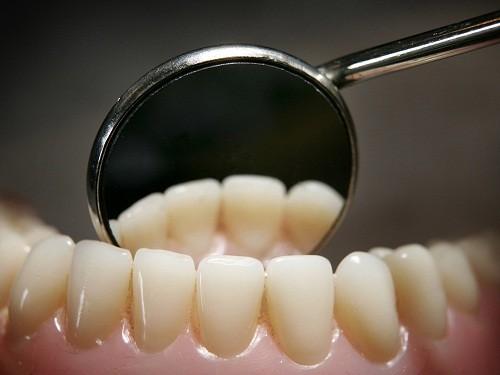 Những người mắc bệnh về nướu răng có nguy cơ cao mắc các bệnh về tim mạch.
