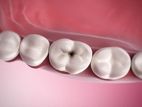 Sâu răng là nguyên nhân khiến chân răng phải tiếp xúc với một loạt các chất kích thích: nóng, lạnh, ngọt, thậm chí không khí.