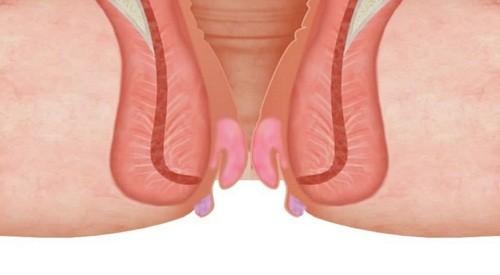 Khi bệnh tiến triển nghiêm trọng, búi trĩ càng ngày càng sưng to và sa ra ngoài nhiều, dùng tay cũng không thể đẩy búi trĩ co trở lại.