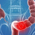 Tư vấn: Bệnh viêm đại tràng có nguy hiểm không?
