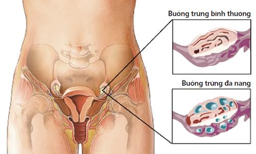 Hội chứng buồng trứng đa nang là rối loạn liên quan đến mất cân bằng hormon và kháng insulin