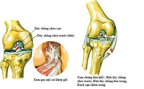 Khi bị đứt dây chằng đầu gối, người bệnh thấy tiếng kêu rắc trong khớp, đau, đi lại khó khăn
