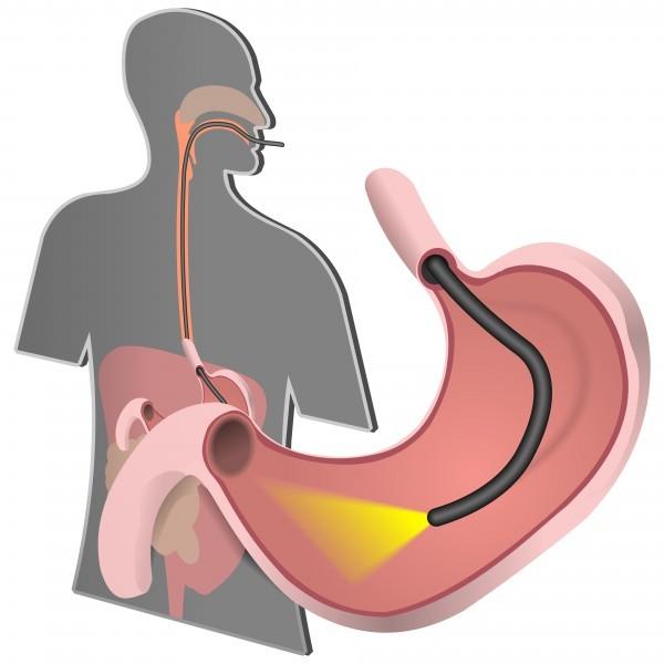 Nội soi dạ dày gây mê có nguy hiểm không là thắc mắc của nhiều người khi được chỉ định thực hiện xét nghiệm này.