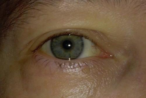 Nếu sỏi đi ra sỏi túi mật và ngăn chặn dòng chảy của mật, người bệnh có nguy cơ bị vàng da.