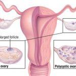 U nang buồng trứng và những điều cần biết