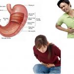 Tìm hiểu về viêm đại tràng mạn tính