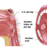 Bệnh viêm VA