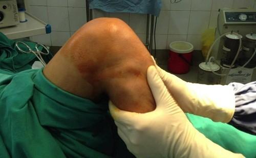 Phẫu thuật tái tạo dây chằng chéo trước gối là giải pháp an toàn, hiệu quả cho những trường hợp bị đứt dây chằng