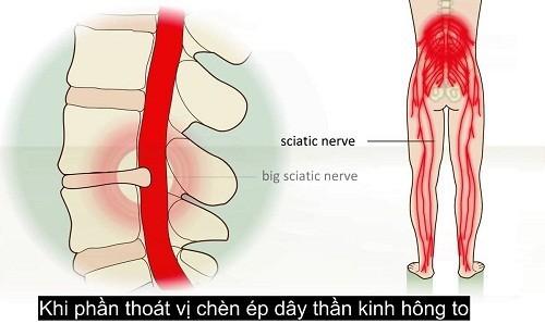 mo-thoat-vi-dia-dem