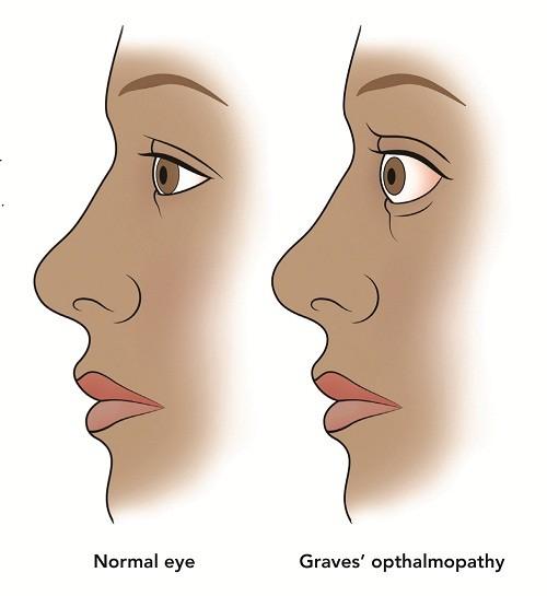 Bệnh mắt Graves thường gặp ở người bị cường giáp, đặc biệt là những người có thói quen hút thuốc.