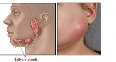Triệu chứng viêm tuyến nước bọt