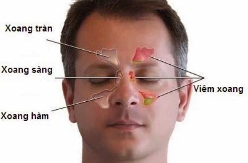 Viêm xoang cấp tính là tình trạng viêm niêm mạc các xoang cạnh mũi, xuất hiện lần đầu tiên và kéo dài không quá 8 tuần.