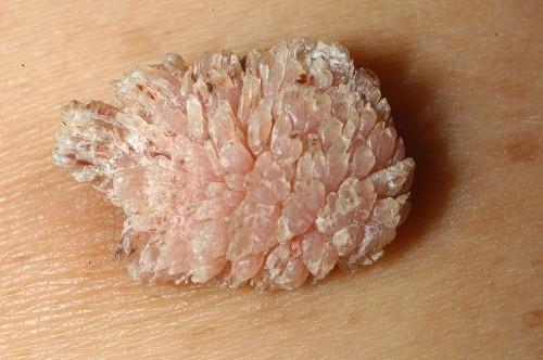 Cơ quan sinh dục của nam giới xuất hiện các nốt mụn nhỏ tập trung thành mảng sần là triệu chứng thường gặp của bệnh sùi mào gà ở nam giới.